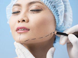 chirurgie du menton tunisie