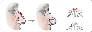 Chirurgie correction du nez