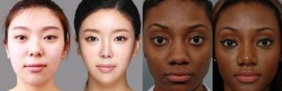 chirurgie nez asiatique Turquie